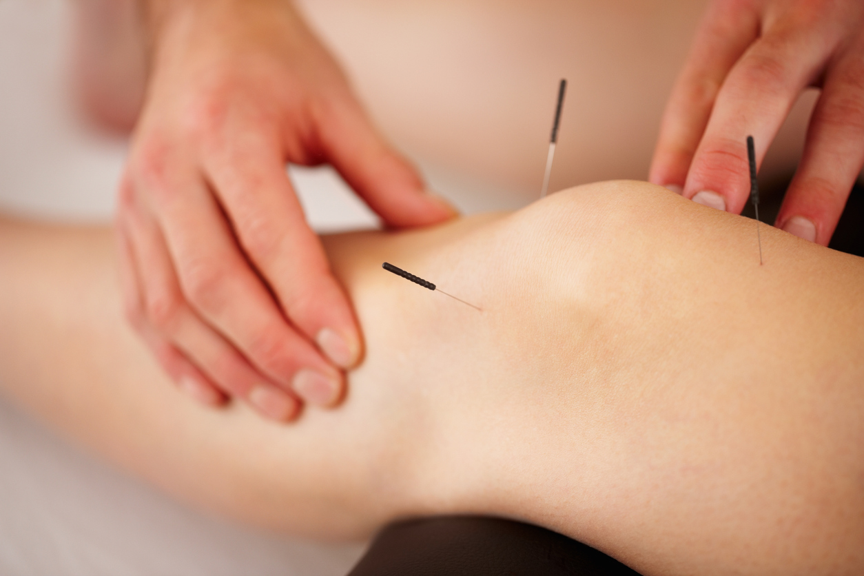 View of woman's leg with acupuncture needles