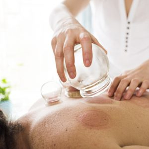 Photo of woman removing acupuncture cups from woman's back. Alternative Medicine