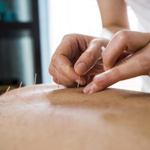 Photo of woman having acupuncture treatment. Alternative Medicine.