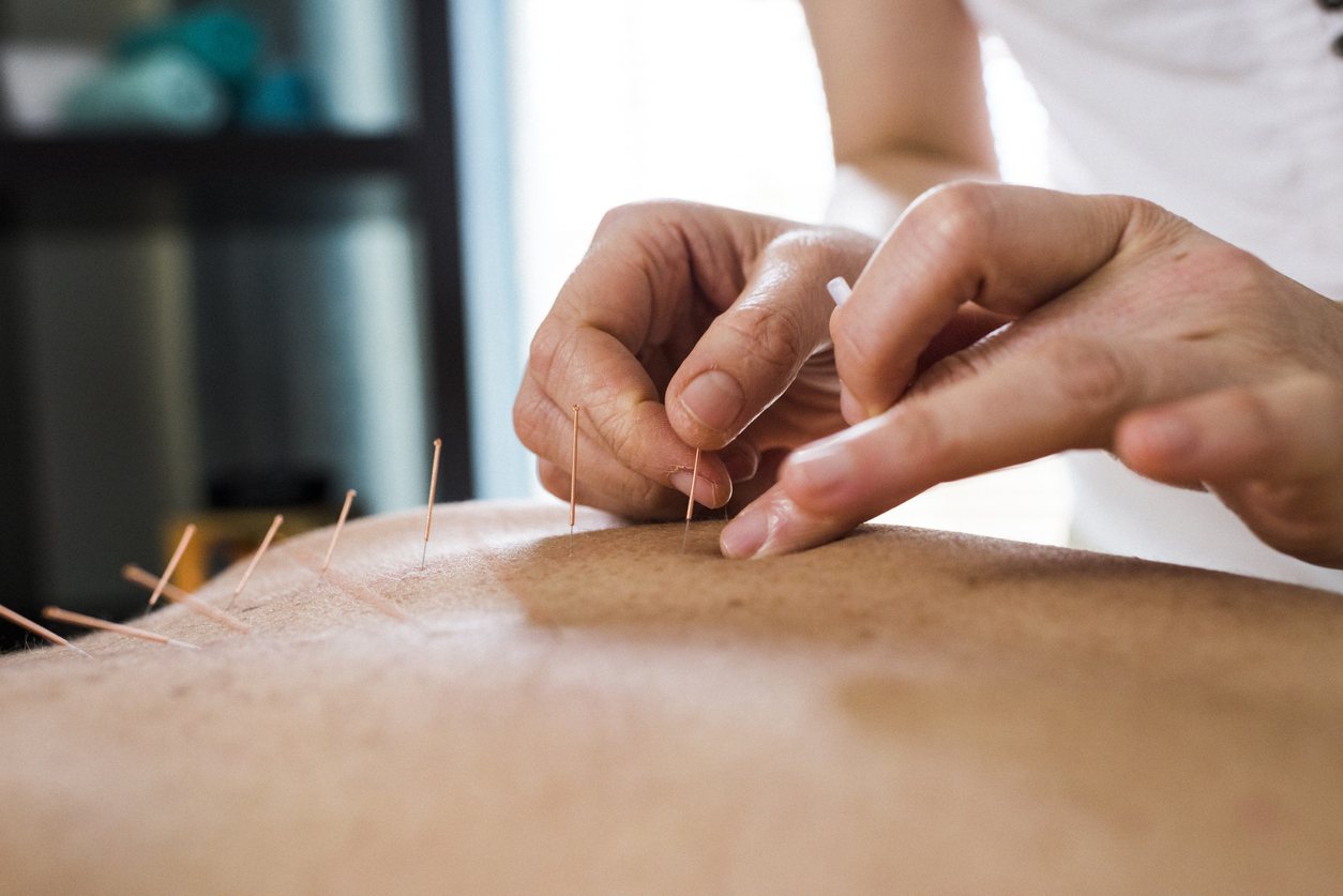Photo of woman having acupuncture treatment. Alternative Medicine.