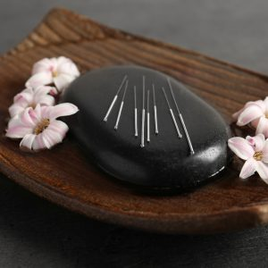 Black spa stone with set of acupuncture needles on tray